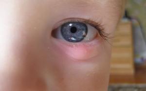 Как вылечить ячмень на глазу у ребенка?