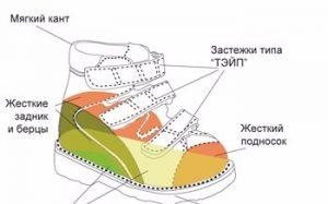 Виды детской ортопедической обуви