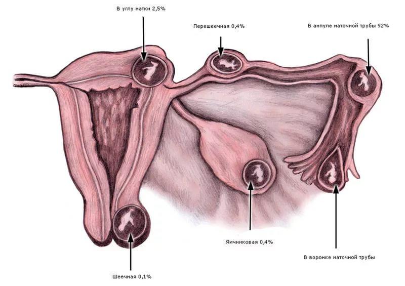 Внематочная беременность: признаки, диагностика и лечение