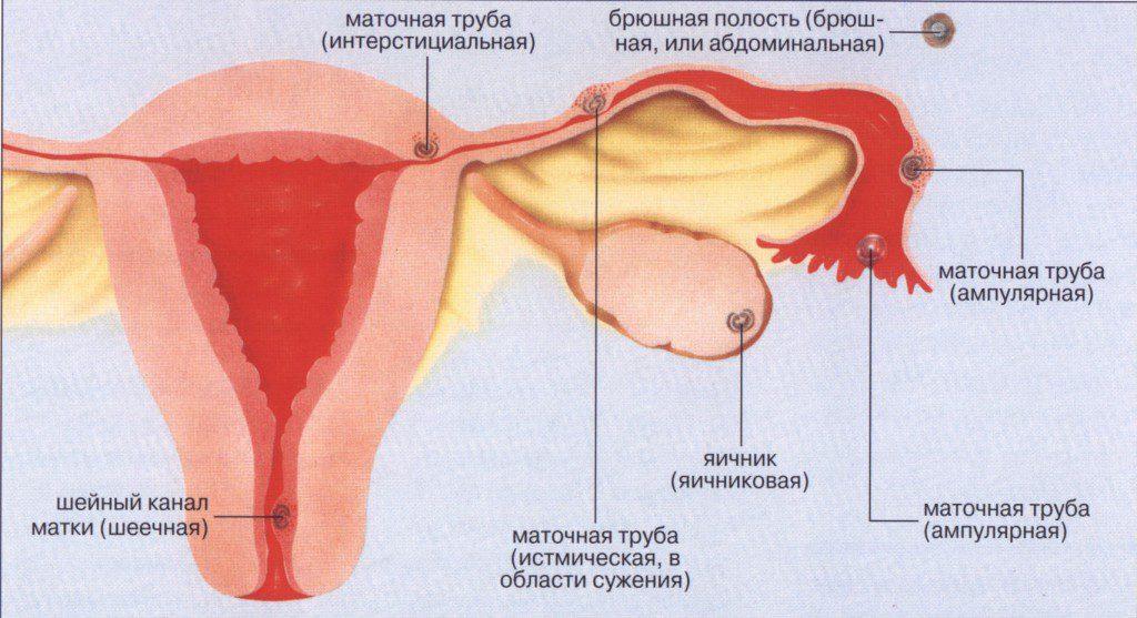 Внематочная беременность: признаки, диагностика и лечение Nuby.ru