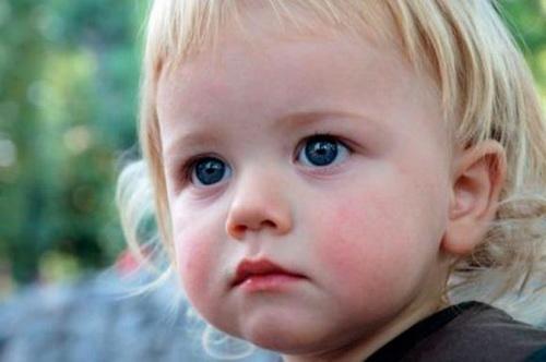 Диатез у ребенка, причины, симптомы и лечение