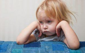 Ветрянка: почему лучше переболеть в детстве?