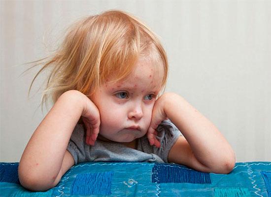 Осложнения после краснухи у детей
