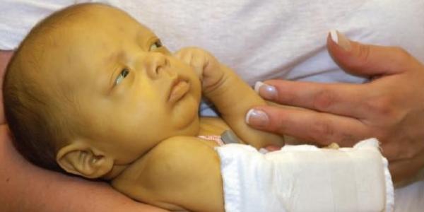Причины, лечение и последствия повышенного билирубина у новорожденных