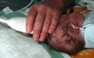 Киста головного мозга у новорожденных: причины появления и методы воздействия