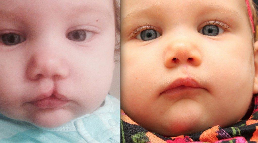 Заячья губа у детей: операция, причины, лечение