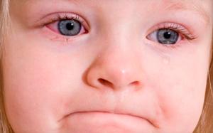 Какие глазные капли лучше для лечения конъюнктивита у детей