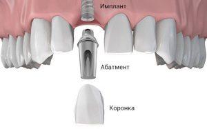 Восстановление зубов в «Имплант Сити»: выгодные предложения с сохранением качества