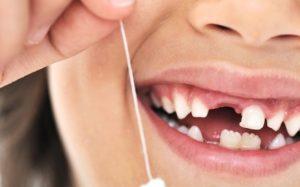 Учёные: Молочные зубы защищают ребенка от многих болезней