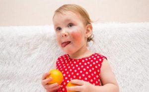 Обнаружена связь между пищевой аллергией и аутизмом