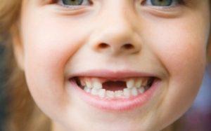 У ребенка кариес. Причины и лечение