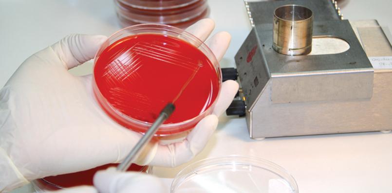 Анализы для беременных на бактериальный посев мочи