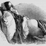 Положение тела во время сна не влияет на исход беременности