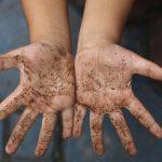 Что делать, если у вашего ребенка глистная инвазия (глисты)?