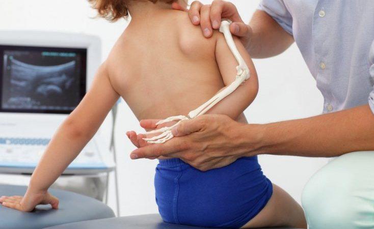 Фибродисплазия: как дети превращаются в камень