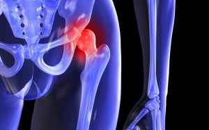 Лечение тазобедренных суставов