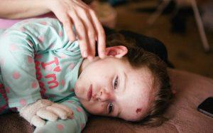 Буллезный эпидермолиз: дети-бабочки, сколько живут, симптомы, лечение