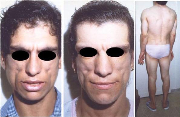 Необычные болезни: врожденная липодистрофия (синдром Берардинелли–Сейпа)
