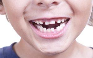 Ученые открыли секрет детской улыбки