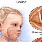 Детский острый ларинготрахеит – что нужно делать?