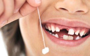 Показания для удаления зубов у маленьких детей