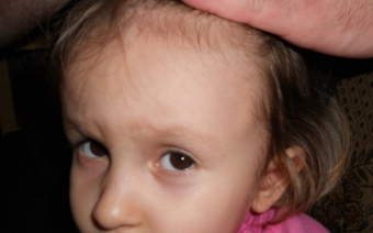Причины появления шишек под кожей. Что предвещает шишка под кожей на виске у ребенка?